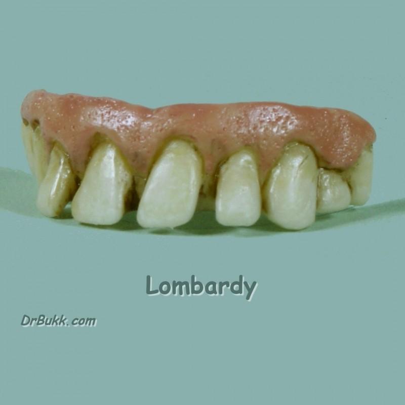 Lombardi Teef