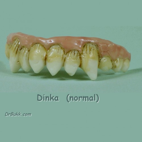 Dinka Teeth